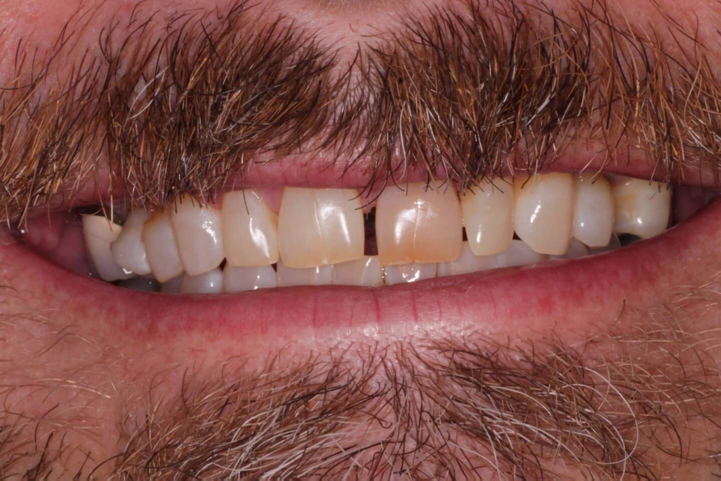 Gap between front teeth and discolored front tooth