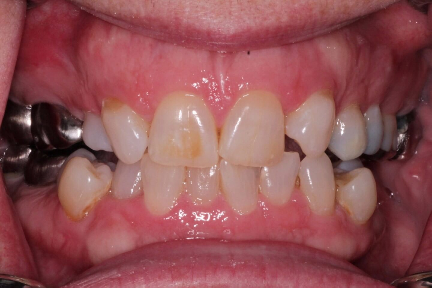 Missing incisors and fluorosis