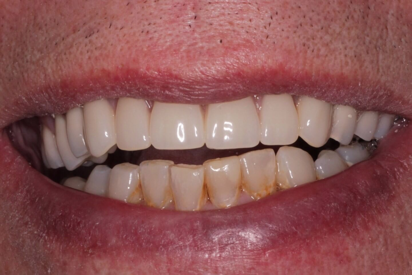 Upper implant bridge (All-on-4)