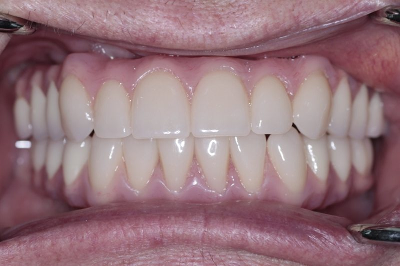 New upper and lower implant bridges (All-on-4)