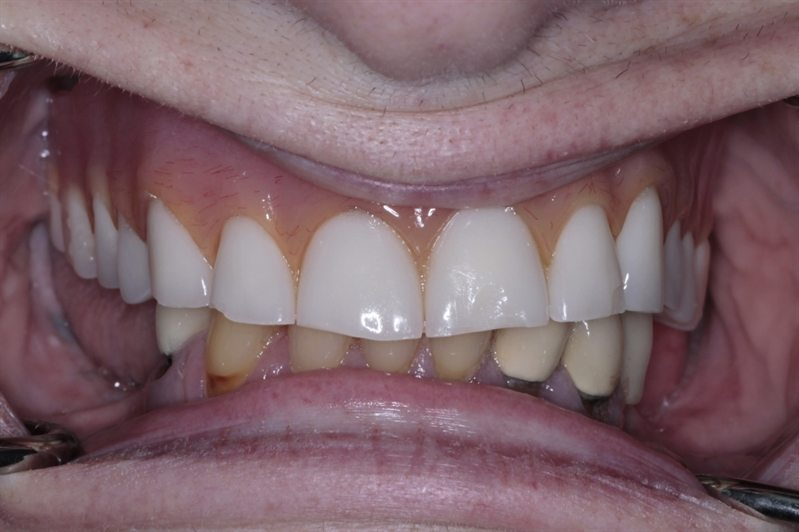 Old, ill-fitting upper denture and unattractive old crowns