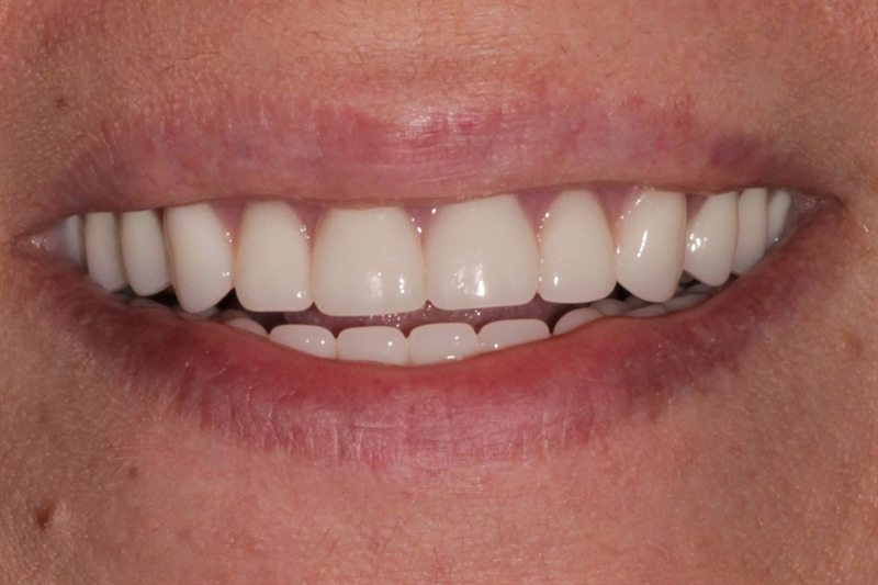 Upper and lower immediate dentures