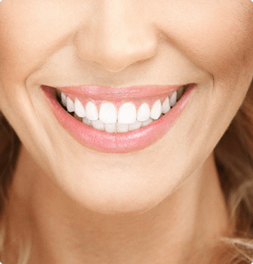 Teeth Whitening - Veneers - Cosmetic Dental - Faber Dental Arts